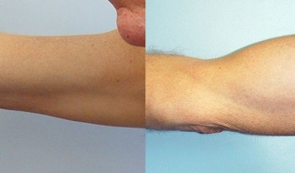 before-after-biceps-02