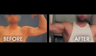 Bicep Augmentation - 47yo male before and 1 month after biceps augmentation with style 8, size 1 implants bilaterally after suffering torn biceps in both arms