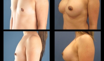 before-after-32yo-female-breast-augmentation-2019