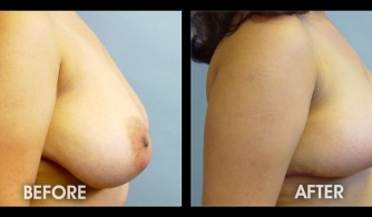 before-after-template-breast-augmentation-44