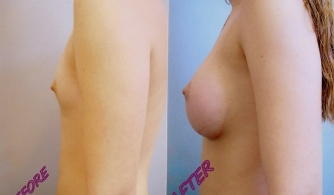 breast-augmentation-gallery-01