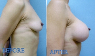 breast-augmentation-gallery-05