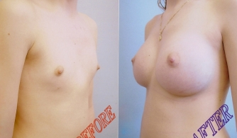breast-augmentation-gallery-07