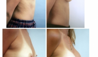 breast-augmentation-gallery-08