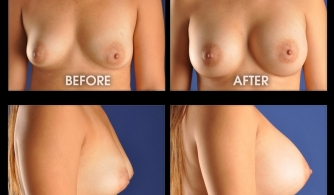 breast-augmentation-gallery-09