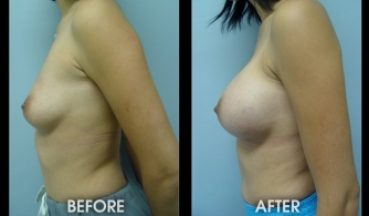 breast-augmentation-gallery-12