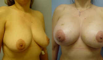 breast-augmentation-gallery-14