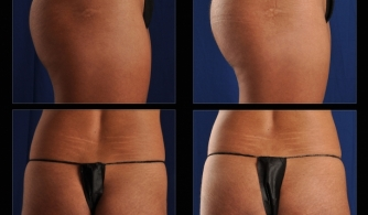 before-after-buttock-implant-01