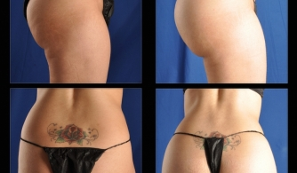 before-after-buttock-implant-02