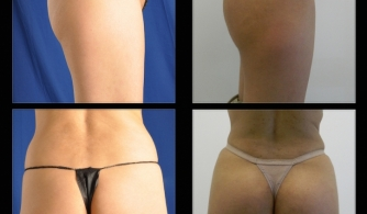 before-after-buttock-implant-03