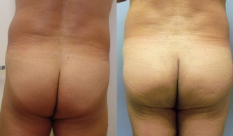 before-after-buttock-implant-04