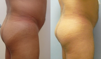 before-after-buttock-implant-05