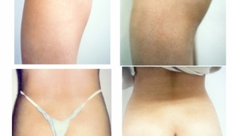 before-after-buttock-implant-06