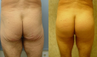 before-after-buttock-implant-07