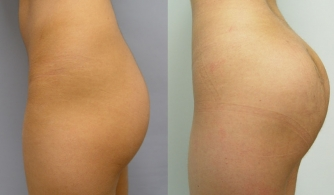 before-after-buttock-implant-08