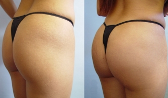 before-after-buttock-implant-09