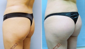 before-after-buttock-implant-11
