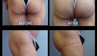 before-after-buttock-implant-12