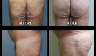 before-after-buttock-implant-13