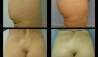 before-after-buttock-implant-14