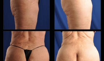 before-after-buttock-implant-15
