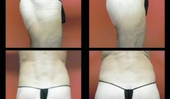 before-after-buttock-implant-16