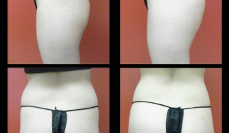 before-after-buttock-implant-18