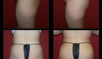 before-after-buttock-implant-19