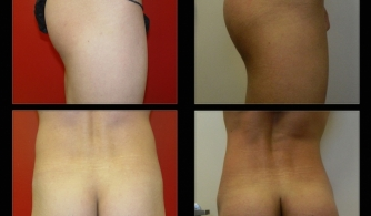 before-after-buttock-implant-20
