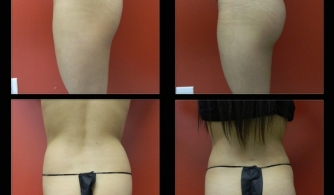 before-after-buttock-implant-21
