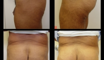 before-after-buttock-implant-22