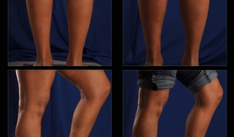 before-after-calf-implants-01