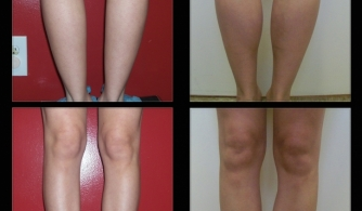before-after-calf-implants-03
