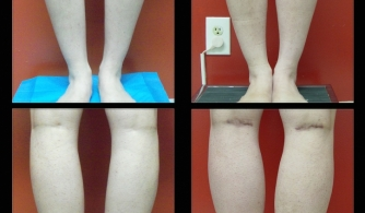 before-after-calf-implants-04