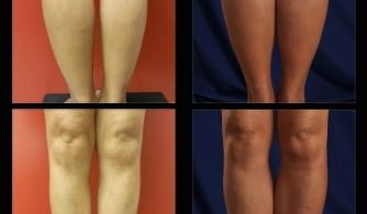 before-after-calf-implants-05