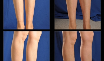 before-after-calf-implants-06