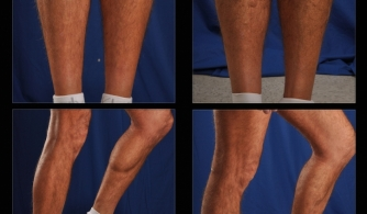 before-after-calf-implants-08