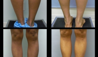 before-after-calf-implants-13