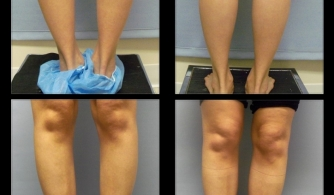 before-after-calf-implants-15