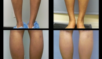 before-after-calf-implants-18