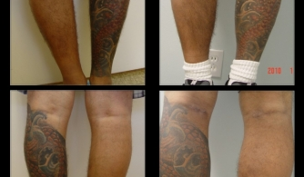 before-after-calf-implants-19