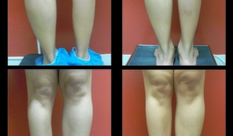 before-after-calf-implants-20