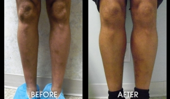before-after-calf-implants-21