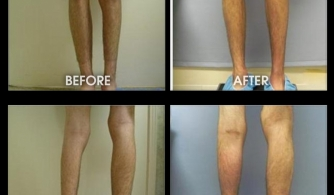 before-after-template-calves-1111