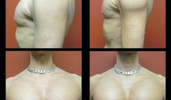 before-after-deltoid-implants-01