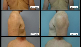 before-after-deltoid-implants-02