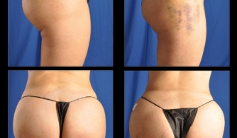 before-after-hip-thigh-01