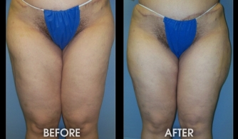 before-after-hip-thigh-05