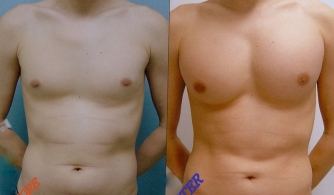 before-after-pectoral-implants-01