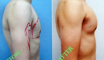 before-after-pectoral-implants-02
